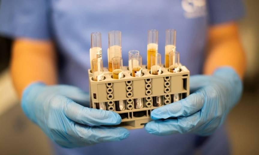 Νεότερες εξελίξεις για τον πιθανό ρόλο της τοσιλιζουμάμπης στην αντιμετώπιση της COVID-19 σοβαρήςπνευμονίας